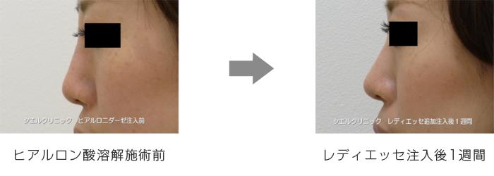 鼻ヒアルロン酸溶解後、レディエッセにて修正注入