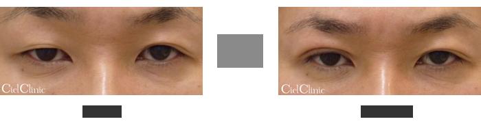 二重埋没法 挙筋法と瞼板法の中間 右目(向かって左)2点留め41歳 男性