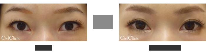 眉毛下切開 隔膜前脂肪除去(瞼を薄くする)27歳 女性
