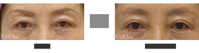 眉毛下切開 68歳 女性