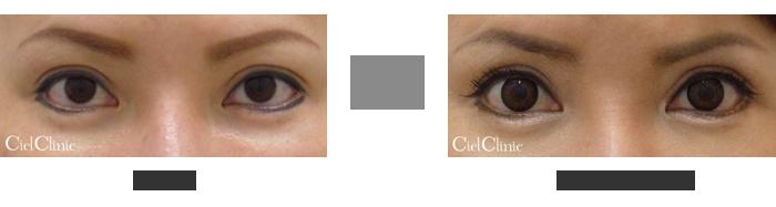 眉毛下切開を利用した二重幅の微調整 37歳 女性