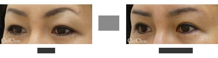 眉毛下切開 隔膜前脂肪除去 39歳 女性
