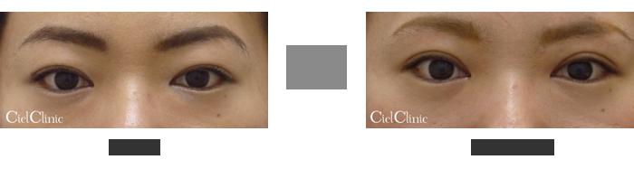 眉毛下切開 隔膜前脂肪除去 26歳 女性