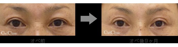 眉毛下切開 50歳 女性