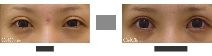 眼瞼下垂(挙筋前転術)他院修正 31歳女性