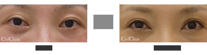 眼瞼下垂(挙筋前転術)を用いた二重切開他院修正 32歳 女性