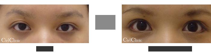 眼瞼下垂(挙筋前転術)20歳 女性