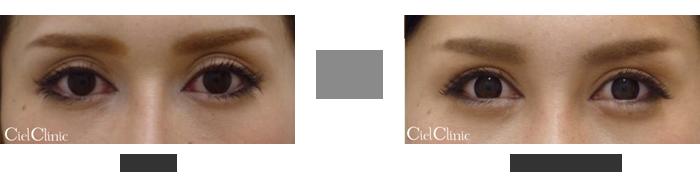 眼瞼下垂(挙筋前転術)目頭切開 目尻切開 25歳女性