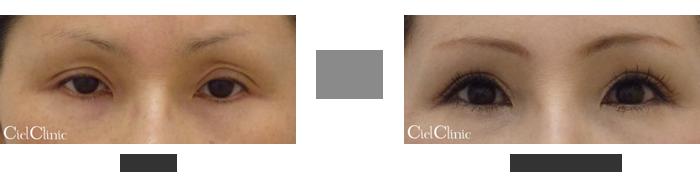 眼瞼下垂(挙筋前転術)を用いた二重切開他院修正 44歳 女性