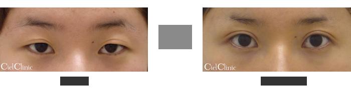 眼瞼下垂(挙筋前転術)隔膜前脂肪除去 18歳 女性