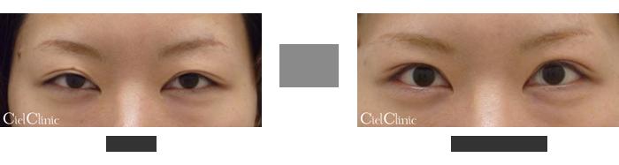 眼瞼下垂(挙筋前転術)27歳 女性