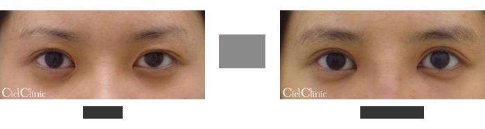 左目眼瞼下垂(挙筋前転術)他院修正 右目二重切開他院修正 19歳 女性