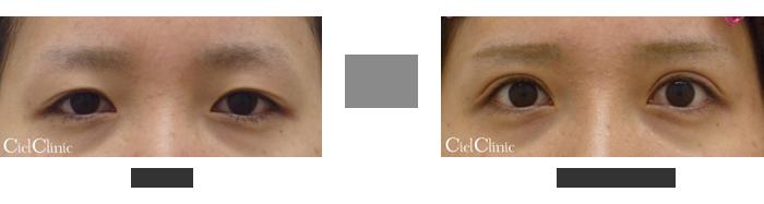 眼瞼下垂(挙筋前転術)24歳 女性