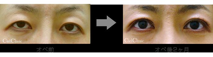 眼瞼下垂(挙筋前転術)他院修正 40歳 女性