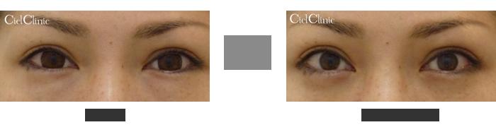 結膜下眼瞼脱脂 30歳 女性