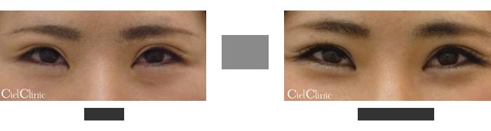 経結膜下眼瞼脱脂 24歳 女性