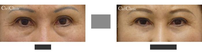 下瞼脂肪除去 経結膜下脱脂 33歳 女性