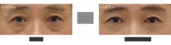 目の下のタルミ取り+眼輪筋つり上げ+ハムラ(脂肪移動術)