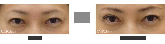 眉毛下切開 右側のみ(向かって左)42歳 女性