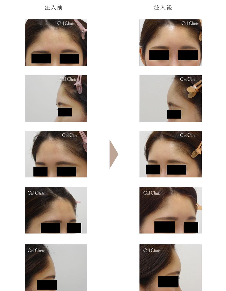 額ヒアルロン酸 症例写真