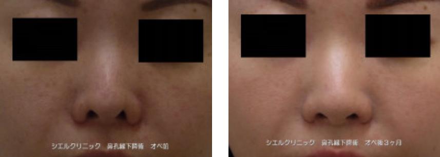 鼻孔縁下降 症例写真