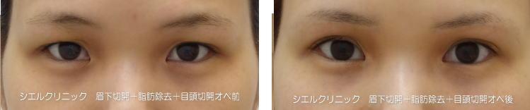 眉下切開+脂肪除去術後2年目頭切開術後1年