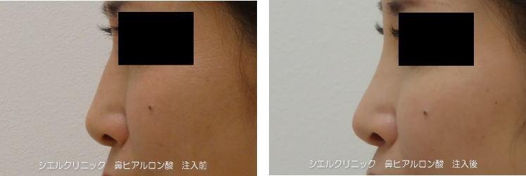 鼻ヒアルロン酸クレヴィエル0.5㏄カニューレ注入症例写真