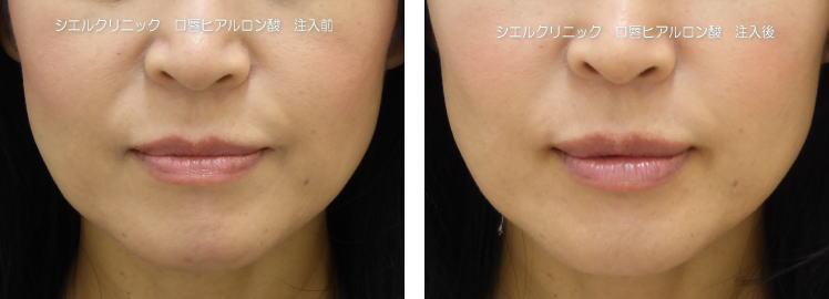 くちびるボリュームアップ 口唇ヒアルロン酸 ジュビダームビスタボルベラXC注入