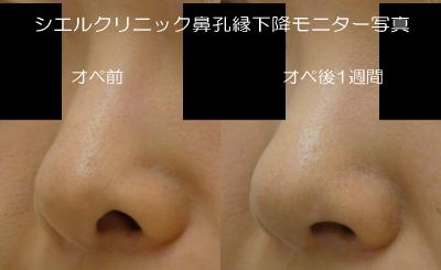 鼻孔縁下降