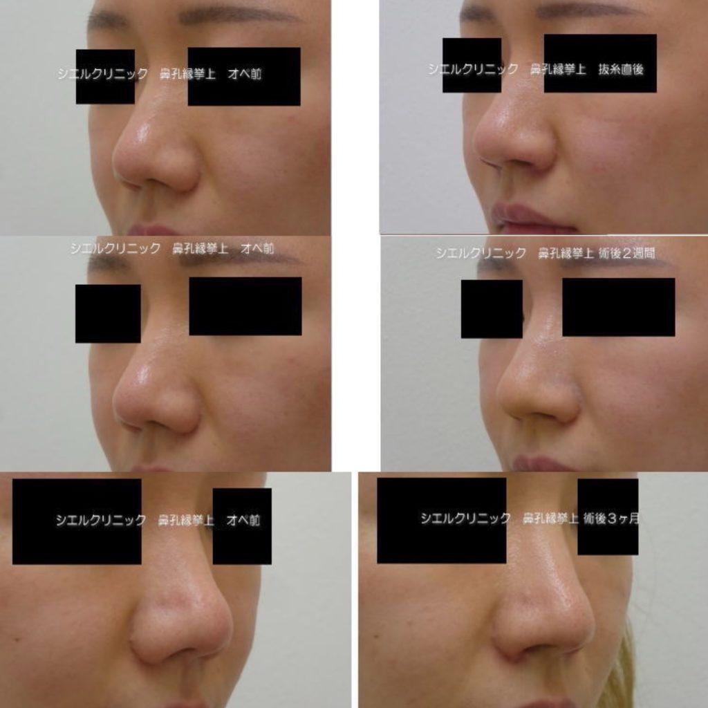 鼻孔縁挙上 ブログ